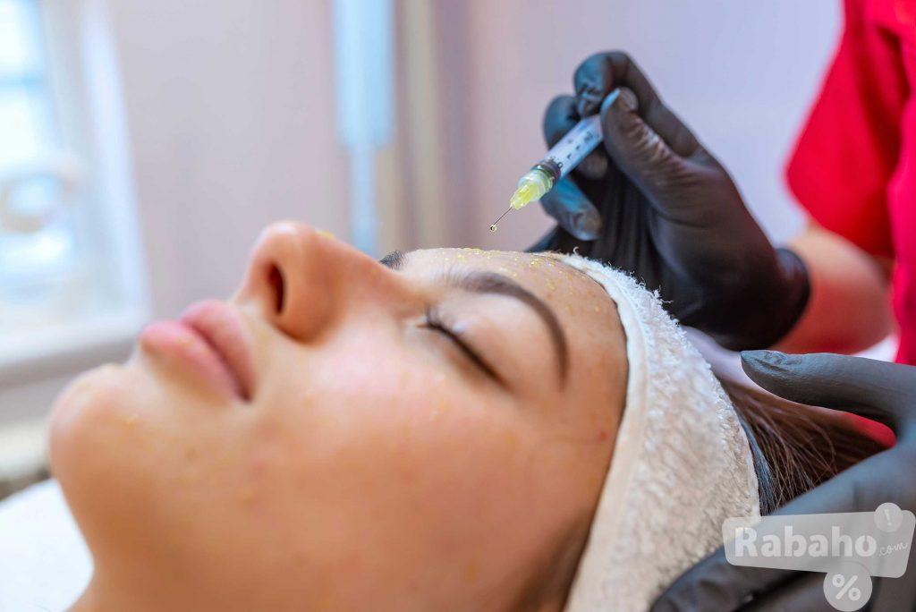 Mezoterapija-tretman